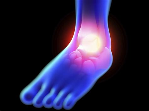 How can diet affect the swelling of your feet and hands?