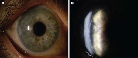 Corneal Edema After Descemet Membrane Stripping Automated