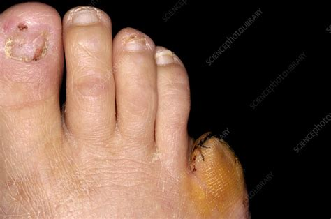 Amputated toe - Stock Image C002/4941 - Science Photo Library