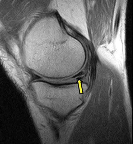 What is Magnetic Resonance Imaging (MRI) of the Knee