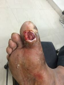 The Treatment Of Great Toe Ulcers in Diabetics   savelegs