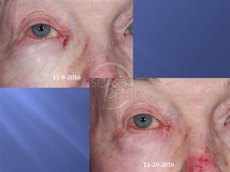 MEDIAL CANTHUS BASAL CELL CARCINOMA FOLLOW UP - Skin