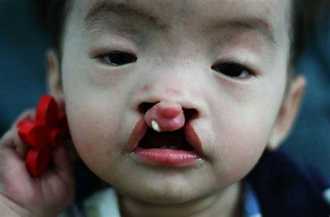 Cleft lip on a baby - Weird Picture Archive